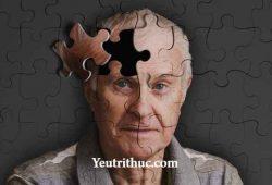 Parkinson là bệnh gì – tìm hiểu thông tin về bệnh Parkinson 1