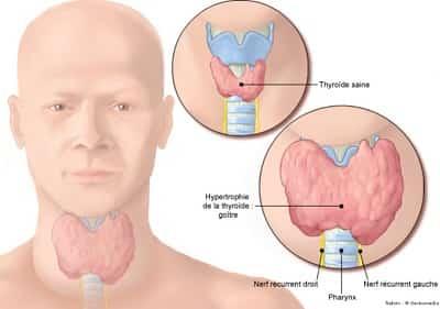 Basedow là bệnh gì, tìm hiểu bệnh Graves, Parry, hội chứng Cường Giáp 2