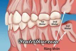 Răng số 8 là răng gì, tìm hiểu những nguy cơ răng khôn 1